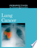 Lung cancer /